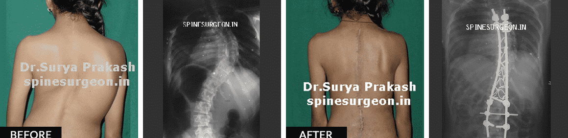 View here Spine surgery Before and After pictures
