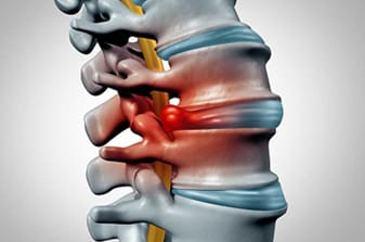 Book appointment for your spinal infection treatment by Dr Surya Prakash, Best Spine Surgeon in Hyderabad India