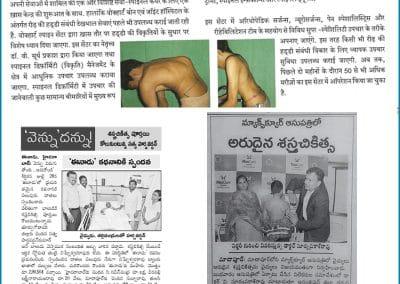 A Successful Kyphosis Surgery in Hyderabad by Dr Surya Prakash Rao Voleti, Best Spine Surgeon in Hyderabad