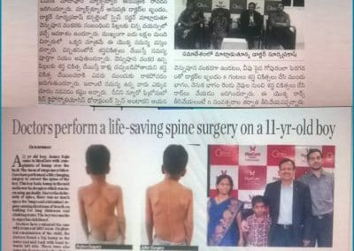 Read now about this Successful recovery story of Kyphoscoliosis Neurofibromatosis, a spinal deformity surgery by Dr Surya Prakash Rao Voleti, Best Spine Surgeon in India Hyderabad