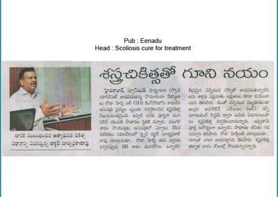 Dr Surya Prakash Voleti explaining the spinal deformity treatment for Scoliosis in India