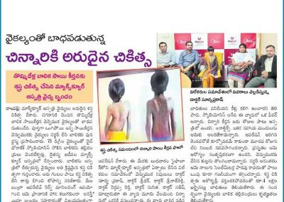 Read now and learn how this child got successful treatment for his rare spinal deformity, by Dr Surya Prakash Rao Voleti in Hyderabad