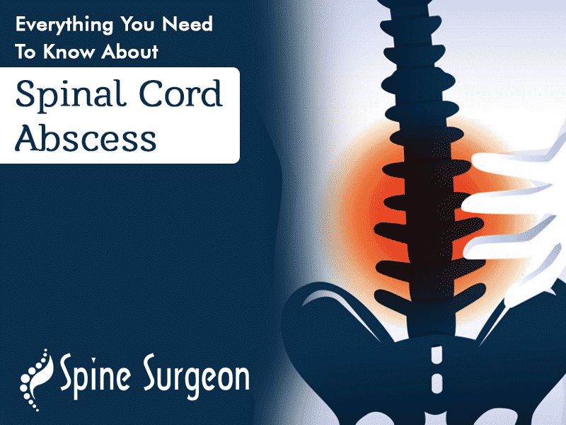 Everything You Need To Know About Spinal Cord Abscess