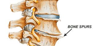 Best hospital for Bone spur treatment Hyderabad by Dr Surya Prakash Rao, Best Spine Surgeon in Hyderabad