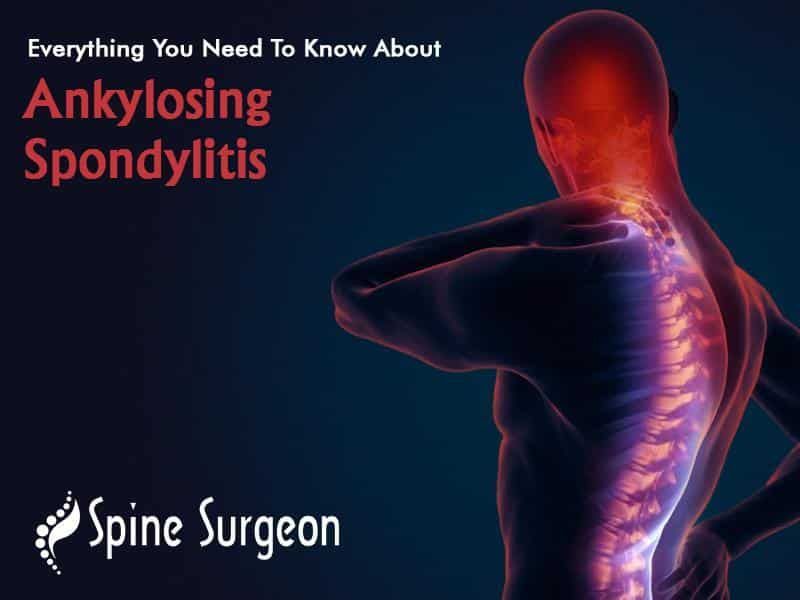 Everything You Need To Know About Ankylosing Spondylitis