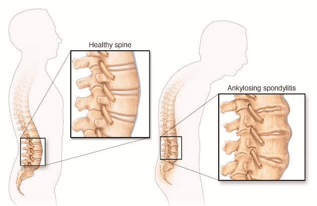 Most Common Spinal Problems In Elderly: How To Treat Them?