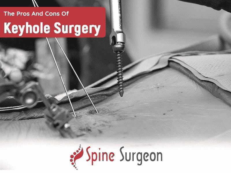 The Pros And Cons Of Keyhole Surgery