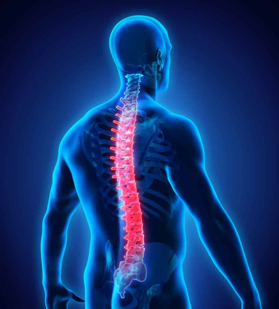 What Is The Recovery Time Post Fractured Vertebrae With No Spinal Cord Damage?