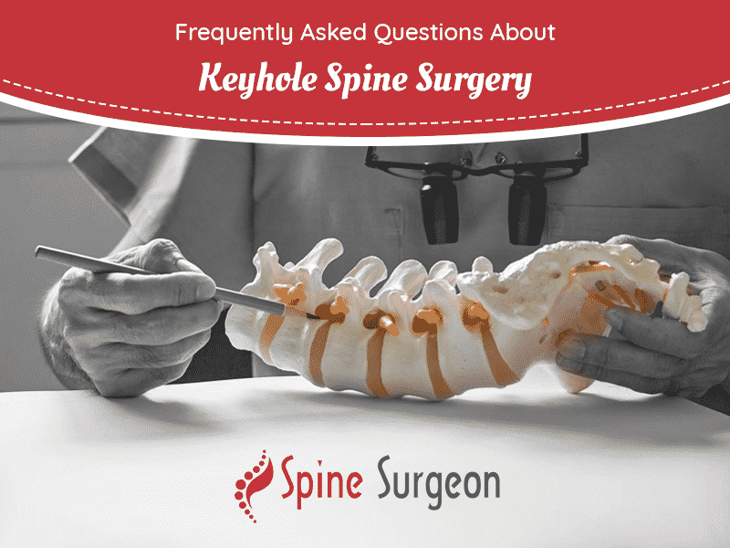 Frequently Asked Questions About Keyhole Spine Surgery
