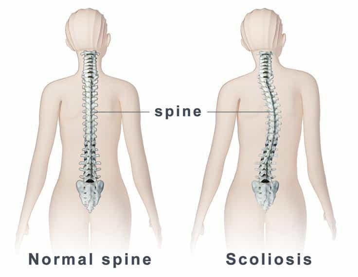 Know The Basic Facts About Scoliosis