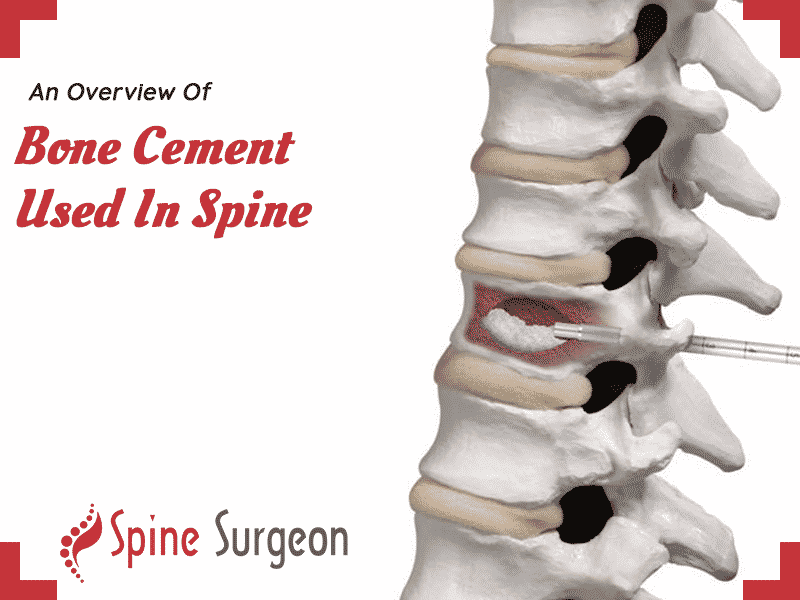 An Overview Of Bone Cement Used In Spine