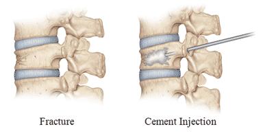 Consult Dr Surya Prakash Rao Voleti, Best Spine Surgeon in India for Bone Cement Treatment in Hyderabad