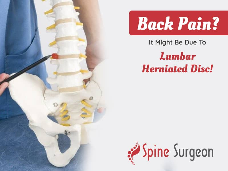Back Pain? It Might Be Due To Lumbar Herniated Disc!