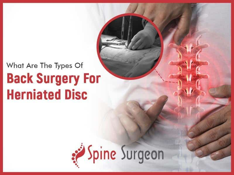 What Are The Types Of Back Surgery For Herniated Disc