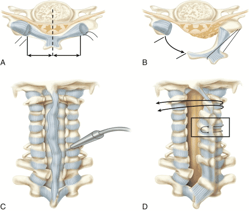 Lower Back Surgery , Spondylitis treatments Hyderabad - Consult our Spine Doctor Now