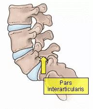 pars interarticularis fracture treatment in Hyderabad by Dr Surya Prakash Rao, Best Spine Surgeon in Hyderabad