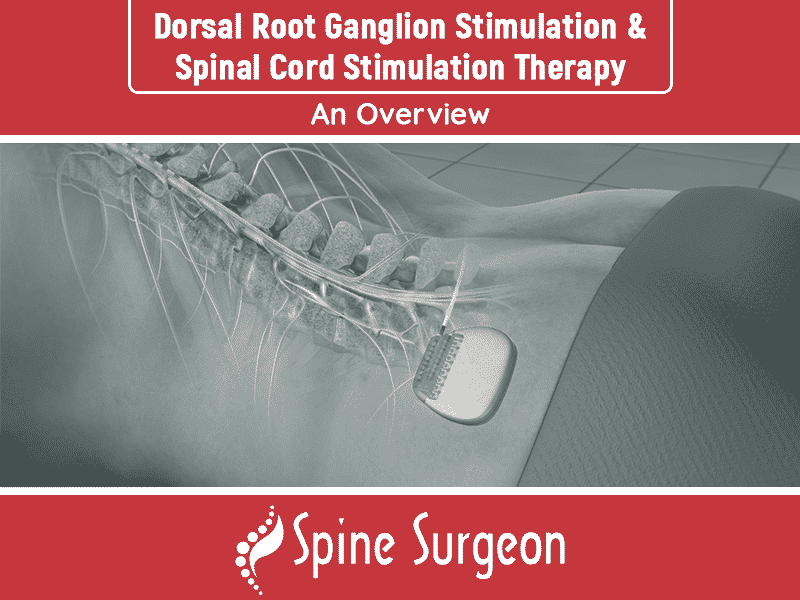 Dorsal Root Ganglion Stimulation & Spinal Cord Stimulation Therapy: An Overview