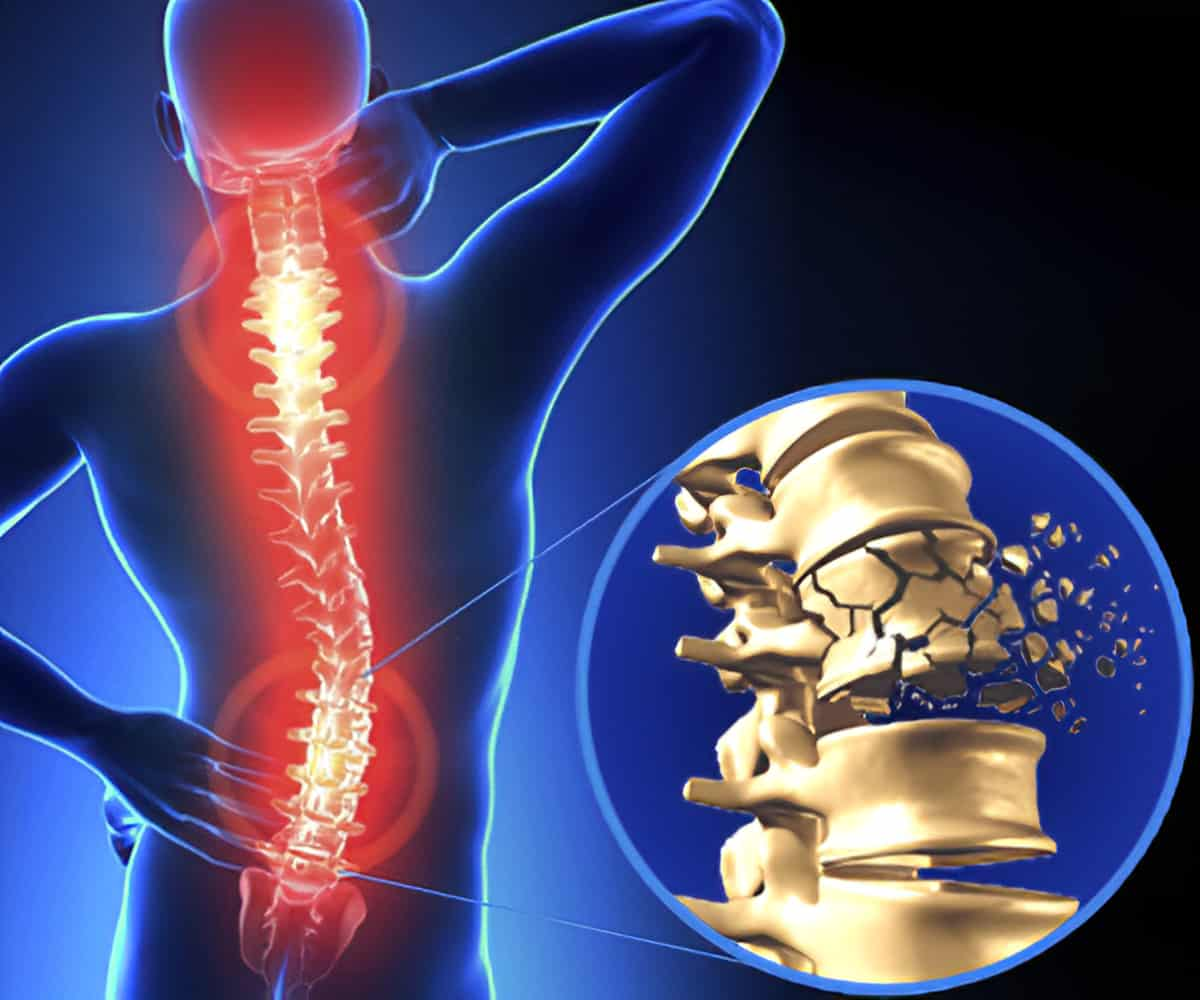 Surgical Treatment For Spinal Injuries, spinal cord specialist near me