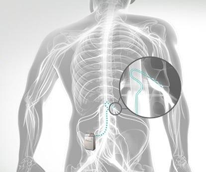 Dorsal root ganglion stimulation procedure in Hyderabad Dr Surya Prakash Rao, Spine Surgeon in Hyderabad