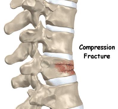 Best treatment for spinal compression fracture, Spine surgeon in Hyderabad - Dr Surya Prakash Rao Voleti