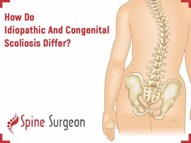 How Do Idiopathic And Congenital Scoliosis Differ?