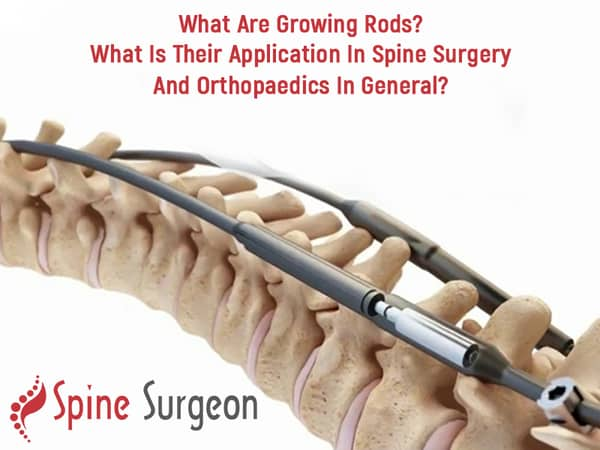 What are growing rods? What is their application in spine surgery and orthopaedics in general?