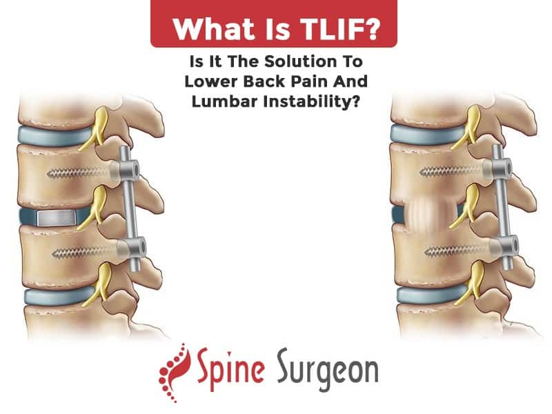 What is TLIF? Is it the solution to lower back pain and lumbar Instability?