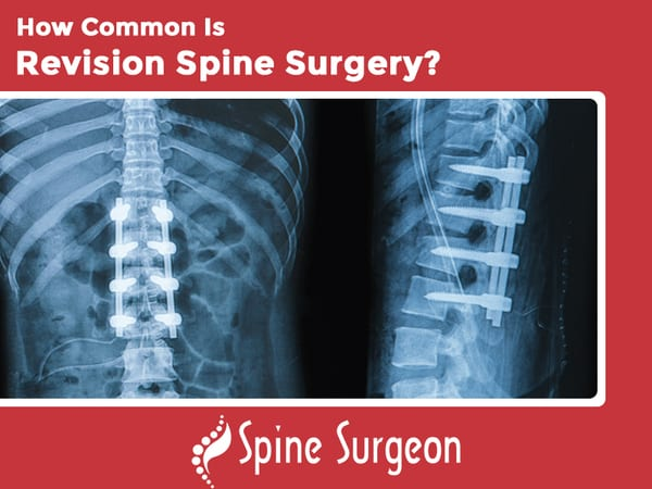 How Common Is Revision Spine Surgery