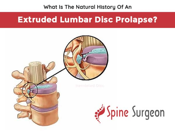 What Is The Natural History Of An Extruded Lumbar Disc Prolapse?