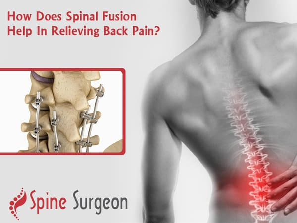 How Does Spinal Fusion Help In Relieving Back Pain?