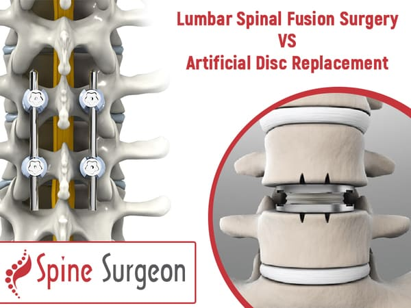 Lumbar Spinal Fusion Surgery VS Artificial Disc Replacement