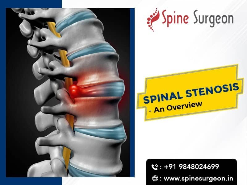 An Overview of Spinal Stenosis