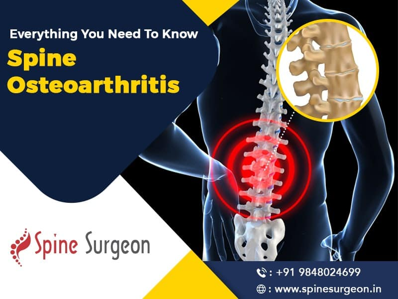 Everything you need to know about Spine Osteoarthritis