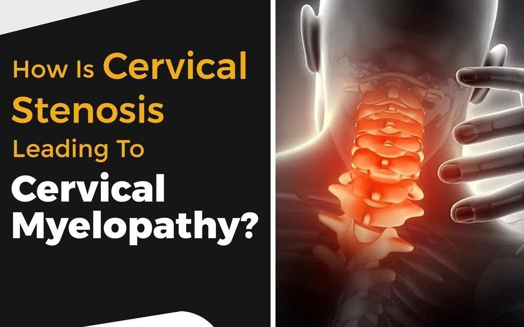 How is cervical stenosis leading to cervical myelopathy?
