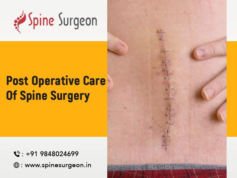 Post Operative Care for Spine Surgery