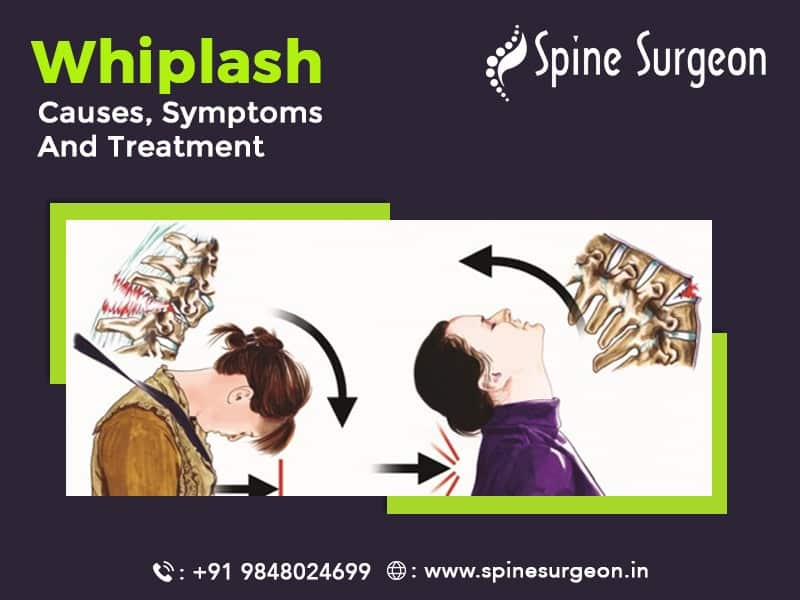 Whiplash Causes, Symptoms and Treatment