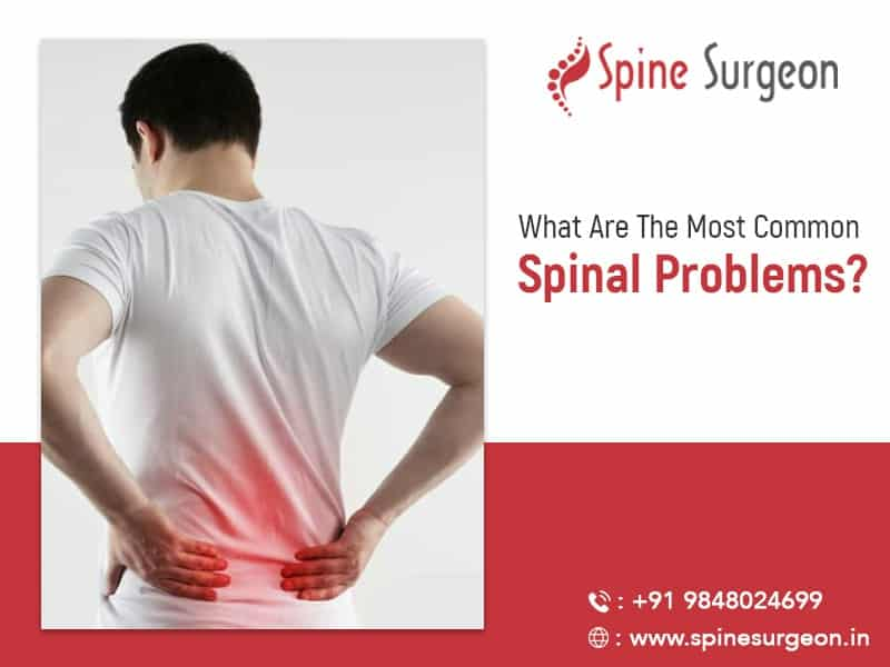What are the most common spinal disorders?